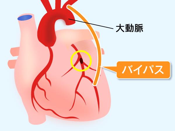 CABG 冠動脈バイパス手術 | 当院...